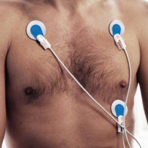 Elettrodi ECG